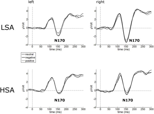 Illustration of the N170 component averaged across left and right occipital electrode clusters per experimental group (HSA vs. LSA) for negatively, neutrally, and positively contextualized faces. Overall, N170 amplitudes are diminished in HSA compared to LSA.