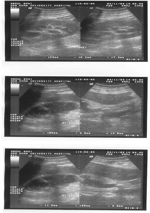 Nephrostomy Tube Ultrasound