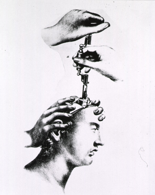 <p>Demonstrating of use of trephining instruments on man's head.</p>