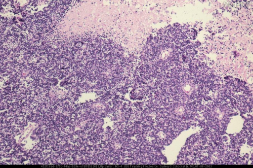Microscopically, the neoplasm was characterized by sheets of cells with extensive areas of necrosis.
