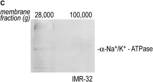 Intracellular redistribution of newly synthesized Gβ subunits. (A) IMR-32 cells were pulse-labeled with 150 μCi [35S]methionine for 2.5 min and chased for the times indicated. A crude homogenate was separated into microsomes and cytosol by centrifugation  at 100,000 g for 1 h at 4°C. The pellets recovered were considered the M fractions and contained plasma membranes and microsomal  membranes, whereas the supernatant contained the cytosol (fraction C). Solubilization of subcellular fractions in NP-40/Lubrol lysis  buffer was as for Fig. 1. Gβ was recovered in the absence (−) or presence (+) of 0.2% SDS. mAb ARC9 immunoprecipitates were analyzed on a 12.5% SDS-PAGE. (B) IMR-32 cells were pulse-labeled as in A and chased for up to 180 min. Membrane and cytosol fractions were prepared by differential centrifugation, yielding fractions designated plasma membranes (28,000 g pellet); microsomes (100,000 g  pellet); and cytosol (100,000 g supernatant). All immunoprecipitations with ARC9 were done in the presence of 0.2% SDS. Samples  were resolved by 12.5% SDS-PAGE. Although at 15-min chase some of the total cell lysate was inadvertently lost in this experiment,  the ratio between the cytosolic and microsomal β as the relevant parameter can still be evaluated. (C) The plasma membrane marker  α-Na+/K+-ATPase is detectable in the 28,000 g membrane fraction, but not in the 100,000 g pellet. 50-μg aliquots of membrane fractions as obtained in B were subjected to electrophoresis on a 12.5% SDS-PAGE and transferred to nitrocellulose. The blotting membrane was incubated with rabbit anti–α-Na+/K+-ATPase antiserum.