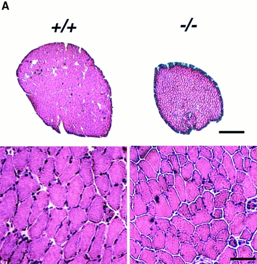 Reduced muscle size in NFATC2−/− soleus muscles is due to a decrease in myofiber CSA. (A) A comparison of hematoxylin and eosin–stained sections of wild-type and NFATC2−/− soleus muscles clearly demonstrates the smaller size of the mutant muscle (top). At higher magnification, CSA of individual NFATC2−/− myofibers is also smaller (bottom). (B) The CSA of both type I and type II MyHC-expressing myofibers is reduced in the NFATC2−/− muscles. (C) No difference exists in the total number of myofibers in NFATC2−/− soleus muscles compared with wild-type. (D) Representative sections immunostained with antibodies against type I and type II MyHC are shown (left). A small decrease in the percentage of myofibers expressing type I MyHC occurs, but no difference exists in the percentage of type II myofibers (right). Data are mean ± standard error; n = 5–6 for wild-type and n = 5–6 for NFATC2−/− (*P < 0.05). Bars: (A, top) 200 μm; (A, bottom and D) 60 μm.