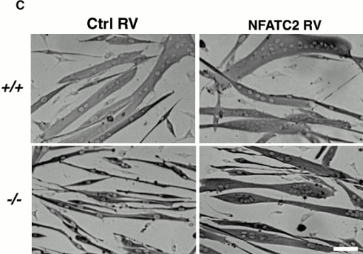 The lack of NFATC2 in mutant myotubes is responsible for the cellular phenotype. (A) RT-PCR of RNA from wild-type and NFATC2−/− myoblasts was performed for various NFAT isoforms and normalized to the expression of 18S rRNA. NFATC4 is not expressed in myoblasts of either genotype (data not shown). Data are mean ± standard error; n = 3 for each genotype. (B) Primary myoblasts were infected with an NFAT-responsive reporter and either control (Ctrl) or NFATC2 retroviruses. Cells were induced to differentiate, and luciferase assays were subsequently performed. Data are reported as fold increase in luciferase activity over control cells. Each bar represents the mean ± standard error of four independent experiments each performed in triplicate (*P < 0.05). (C) Wild-type and NFATC2−/− myoblasts were infected with either control or NFATC2 retroviruses (RV) and induced to differentiate for 48 h. NFATC2−/− cultures infected with NFATC2 retrovirus display increased myotube size with an increased number of nuclei. (D) The number of nuclei within individual myotubes (at least two nuclei) was counted for each of the retrovirally infected cultures. Myotubes were grouped into two categories as in the legend to Fig. 4 C, and the percentage of myotubes in each category was calculated. The expression of NFATC2 in NFATC2−/− cultures returns the nuclear number proportions back to that of wild-type distributions. Each bar represents mean ± standard error of three experiments each performed in duplicate (**significantly different from +/+ Ctrl P < 0.05; *significantly different from −/− Ctrl P < 0.05). Bar, 60 μm.