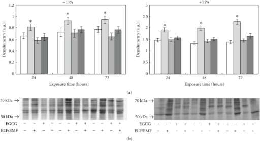 Effect of ELF-EMFs exposure and EGCG treatment on protein oxidation. Protein oxidation was analysed and quantified by measuring the amount of protein carbonyl groups. The densitometric analysis from six separate blots provided for quantitative analysis of the amount of protein carbonyls is present (panel A) and a representative Western blot of protein carbonyls is shown (panel B). Equal protein loading was verified by using an antibody directed against GAPDH (panel C). Caco cells were cultured with and without 150 μM EGCG, with and without TPA and exposed to ELM-EMFs for 24, 48 and 72 hours. After harvesting and lysing the cells, samples were treated according to the OxyBlot procedure (Oxidized Protein Detection Kit, Oncor). Carbonyl groups were revealed by appropriate antibodies using an Enhanced ChemiLuminescence Western blotting analysis system. Data points marked with an asterisk are statistically significant compared to their respective not exposed control cells (P < .05).