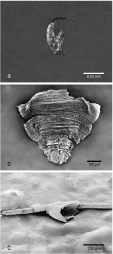 (a) Leg claw of a head louse at stereomicroscope; (b) terminal part of the abdomen of a male head louse at Scanning Electron Microscope (SEM); (c) incomplete nit of pubic louse attached to a hair at SEM.