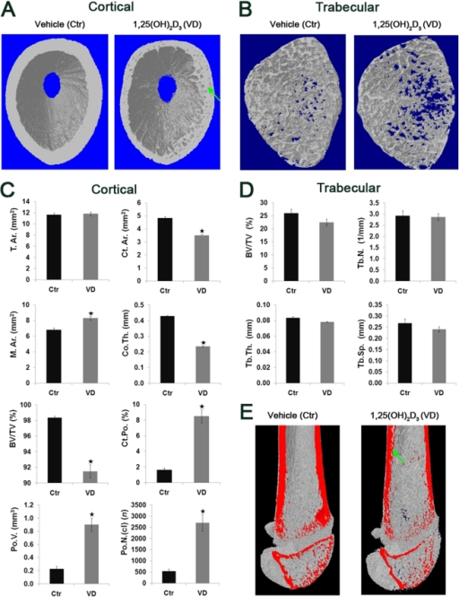 1-month administration of 1,25(OH)2D3 alters cortical bone, but not trabecular bone, architecture by reducing thickness and elevating porosity in young rats.4 weeks old male Spague Dawley rats received i.p. injections of 3 µg/kg 1,25(OH)2D3 (n = 6, VD) or vehicle (n = 6, Ctr) on alternating days, three times a week for a period of 30 days. Femurs were removed and subjected to μ-CT scan from proximal femoral metaphysis to the mid-point of diaphysis, using 13.4 µm voxel size resolution and 4000 ms laser exposure. (A) 3D images of cortical bones. Note the reduced cortical thickness and elevated porosity in the 1,25(OH)2D3-treated group compared to control, as indicated by green arrows. (B) 3D images of trabecular bones. (C) Cortical morphological parameters. (D) Trabecular bone morphological parameters. For abbreviations see figure 4. Results are shown as means (n = 6) ± SE. * denotes p<0.05 comparing 1,25(OH)2D3-treated to control group. (E) 3D images of total scan cut by coronal plane (marked red). Note the reduced thickness and higher presence of pores in the cortical bone of 1,25(OH)2D3-treated group compared to control group, as indicated by green arrows.