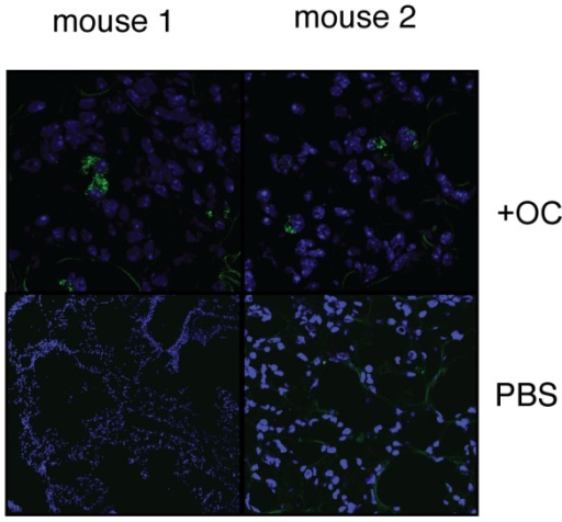 Presence of omentum-derived cells in the bleomycin-injured mouse lung.Omentum cells from transgenic mice that express GFP in non-hematopoietic cells or PBS (Bleo only) were injected into mice that underwent bleomycin-induced lung injury. 1 week after cell injection, mice were analyzed for the presence of GFP+ cells (green cells). (×10).
