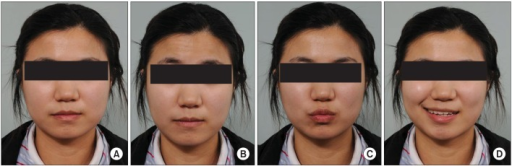 Clinical figures of face. (A) Resting state, (B) frontalis muscle activation, and (C) orbicularis oris muscle activation demonstrated symmetry on both sides. However, (D) zygomaticus muscle activation (on smiling) showed asymmetry.