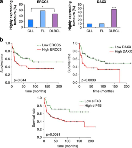 Tissue microarray shows that altered expression of the proteins identified by translational profiling in tumors from patients with B-cell lymphoma corresponds with survival. (a) Tissue microarrays that contained tissues from 362 lymphomas, including 196 DLBCL, 76 FL and 52 chronic lymphocytic leukemias (CLLs) were probed with antibodies against ERCC5 (i) and DAXX (ii), and scored as described in the experimental procedures section. The graphs represent percentage of tumors from each type expressing high levels of the scored protein. The data show that there are differences in expression of DAXX in the DLBCL patient samples compared with the other tumor types, and for ERCC5 a difference in the expression in FL and DLBCL when compared with CLL. Significance between the different categories was assessed by χ2-test (*P<0.05, **P<0.01, ***P<0.001). (b) Patients were separated into groups that have low or high expression of ERCC5 (i) or DAXX (ii), or eIF4B (iii). Survival curves were generated using Kaplan–Meier approximation to compare overall survival in different groups of patients. The significance of the changes in survival was assessed using log-rank P-value. The data show that there are significant decreases in survival in patients that have high expression for ERCC5 (P=0.044), DAXX (P=0.003) and eIF4B (P=0.0081).
