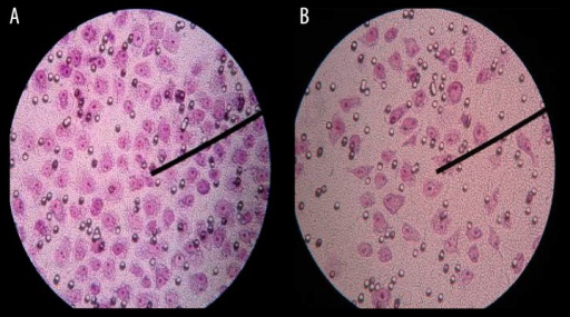 The Hele cells passed through the membrane surface of the transwell chambers in the cell migration experiment in the 1th day. (A) control group, (B) (16 mmHg, 4 h) group.
