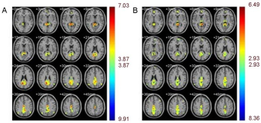 Default mode network of heroin users and normal controls.Different colors represent varying degrees of activation. A cold color means negative activation while a warm color means positive activation.(A) Normal controls showed activation in the prefrontal cortex, posterior cingulated cortex, precuneus, lateral parietal lobe and medial temporal cortices.(B) Heroin users showed activation in the prefrontal cortex, posterior cingulated cortex, precuneus, lateral parietal lobe and medial temporal cortices.