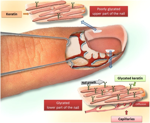 Illustration of the diffusion process of glucose from the deep part to the superficial part of the nail, explaining the differential concentration of glycated proteins in both layers of the human finger nail.