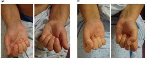 Pre- and Post-treatment photographs of the hands. (a) Pre-treatment photographs (left panel) demonstrate diffuse swelling offingers and limited range of motion. The patient was unable to make a fist. (b) Post-treatment photographs (right panel) demonstratedmarked decrease in swelling and the ability to close her fist.