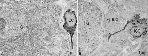 c-Kit immuno EM pictures showing c-Kit+ ICC in wild-type proximal colon and c-Kit– FL-ICC in Ws/Ws mid colon. (a) A c-Kit+ ICC-AP (ICC, dark stained with DAB) situated at a ganglion in Auerbach's plexus. Many caveolae (small arrows) were located along the membrane of the c-Kit+ ICC. (b). A c-Kit– FL-ICC was also close to a myenteric ganglion. Nearby was a c-Kit+ ICC-AP (ICC, dark stained) which was crossed over by a muscle bundle (SM). The processes of ICC and FL-ICC were directly contacting each other (arrow).