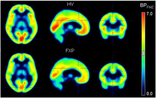 Transversal, sagittal and coronal slices of GABAA receptor PET images expressed in [11C]flumazenil binding potential (BPFMZ) values, averaged for the 10 healthy controls (HV, upper panel) and the 10 fragile X patients (FXP, lower panel).BPND values are indicated by the color bar.