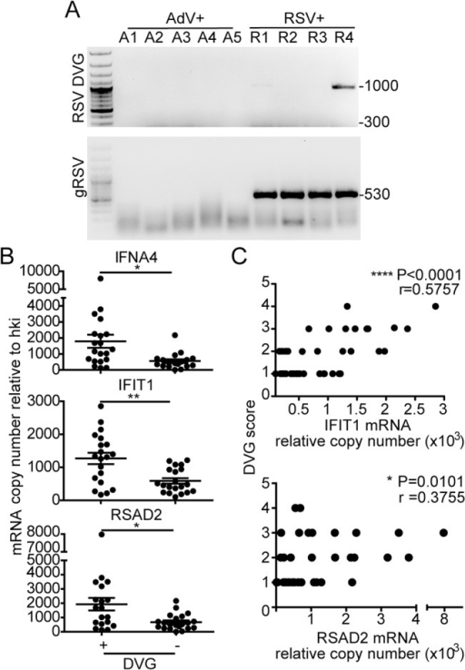 iDVGs associate with high expression of antiviral genes in respiratory secretions from patients infected with RSV.(A) Representative PCR results for gRSV and DVGs in human nasopharyngeal control samples infected with adenovirus (A1-A5) and samples infected with RSV (R1-R4). (B) Gene expression determined by RT-qPCR shown as copy number relative to house keeping genes (*p<0.05, **p<0.01, by two-tailed Mann Whitney test). (C) Samples were scored based on the intensity of the DVG amplicons (1–4, absent to highest intensity) and correlated with the level of expression of antiviral genes. (r = correlation coefficient, p<0.0001 for slope deviation from 0).