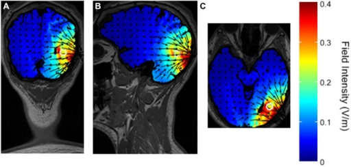 Simulated distribution of the electrical field in the brain with the selected montage. The white circle represents the presumed V5 in the head model. (A) coronal view. (B) sagittal view. (C) axial view.