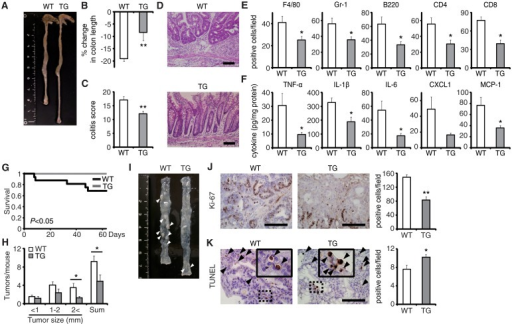 EPRAP overexpression in macrophages ameliorates DSS-induced colitis and colitis-associated tumorigenesis.(A) Representative photographs of colons at the end of DSS treatment; colons were obtained from WT and CD68–mEPRAP transgenic (TG) mice. (B) Percent changes in colon length expressed relative to DSS-free water controls (n = 8 [WT]; n = 6 [TG]). (C) Histological colitis scores (n = 10 [WT]; n = 8 [TG]). (D) Representative H&E staining of rectal sections. (E) The numbers of F4/80-, Gr-1–, B220-, CD4-, and CD8-positive cells infiltrated in colonic tissues of WT and TG mice, per high-power field (400× magnification) (n = 8 each). (F) The expression levels of TNF-α, IL-1β, IL-6, CXCL1, and MCP-1 protein in colonic tissue lysates from DSS-treated WT and TG mice (n = 15 [WT]; n = 8 [TG]). (G) Survival curves during the course of AOM/DSS treatment in WT and TG mice (n = 18 [WT]; n = 11 [TG]; P < 0.05). (H) The numbers of colonic polyps per mouse, with size distribution (left) and total number (right) in colonic tissues of AOM/DSS-treated WT and TG mice (n = 9 [WT]; n = 10 [TG]). (I) Representative photographs of colons at the end of AOM/DSS treatment. (J) Ki-67–positive cells in rectal polyps of AOM/DSS-treated WT and TG mice (left). TG mice exhibited markedly fewer Ki-67–positive cells than WT mice (n = 5 each) (right). (K) Representative photographs of TUNEL assay performed on rectal polyps of AOM/DSS-treated WT and TG mice. The arrows indicate TUNEL-positive apoptotic cells: the insets show higher magnifications of selected regions (indicated by dashed boxes) (left). TG mice exhibited more TUNEL-positive cells than WT mice (right) (n = 5 each). All values represent means ± SEM. *P < 0.05, **P < 0.01 vs. WT mice. Scale bars: 100 μm.