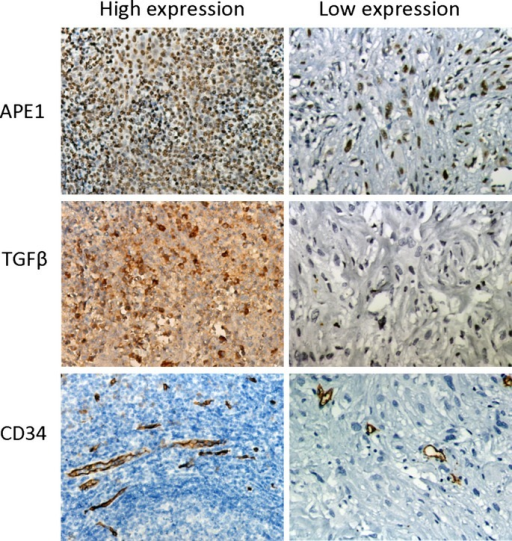 Immunohistochemical expression of apurinic/apyrimidinic endonuclease 1 (APE1), transforming growth factor β (TGFβ), and CD34 in human osteosarcoma. Magnification, ×200 magnification. Left images, high expression of APE1, TGFβ1, and microvessel density staining in an osteoblastic osteosarcoma patient. Right images, representative low expression of APE1, TGFβ1, and microvessel density staining in a fibroblastic osteosarcoma patient.