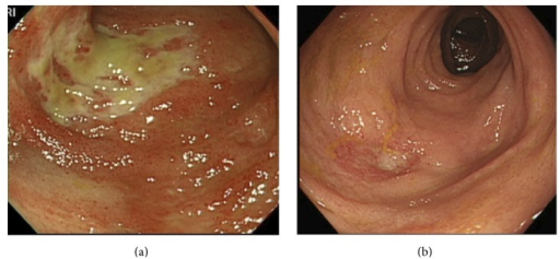 Lower gastrointestinal endoscopic observations. (a) On admission, lower gastrointestinal endoscopy revealed ulcers in the terminal ileum. (b) A week after the initiation of adalimumab, lower gastroendoscopy showed epithelialization of the ulcers.