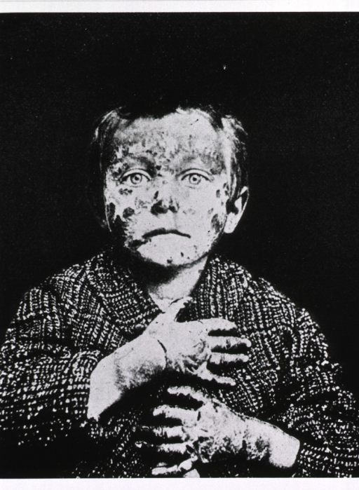 <p>Half-length view of a young boy with severe dermatitis on face and hands.</p>