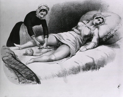 <p>Neonatal scene, with nurse cutting cord of newborn infant, lying between legs of mother on bed.</p>
