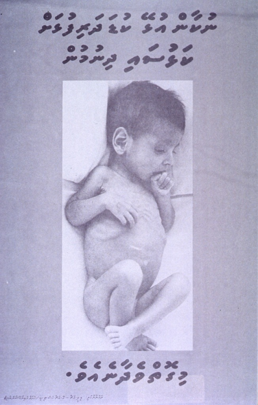 <p>Black and white poster.  All text in Thaana script.  Some text at top of poster.  Visual image is a black and white photo reproduction showing a severely malnourished child or infant.  The child's abdomen is distended and its ribs are visible.  Its extremities are spindly and drawn in toward the body.  Additional text below photo.</p>