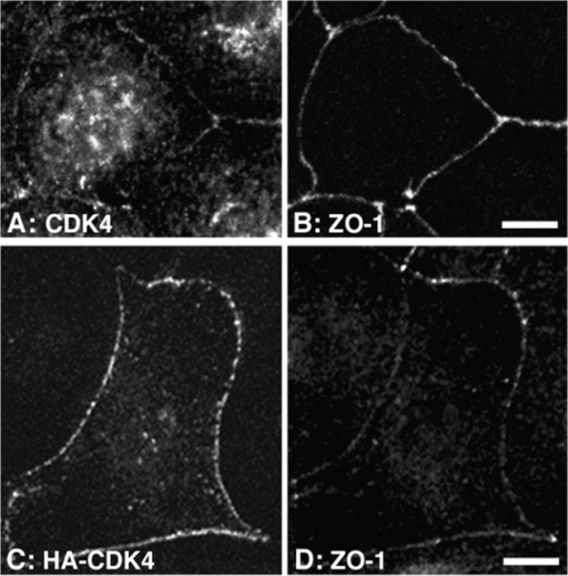 Association of CDK4 with intercellular junctions. (A and B) MDCK cells were plated on coverslips and grown for 3 d. The cells were then fixed with methanol and processed for double immunofluorescence using rabbit anti-CDK4 and rat anti–ZO-1 antibodies. Shown are confocal XY-sections (A, CDK4; B, ZO-1 staining). (C and D) Confocal XY-sections of MDCK cells transiently transfected with a cDNA coding for HA-tagged CDK4. The cells were stained with rabbit anti-HA and rat anti–ZO-1 antibodies (C, HA-CDK4; D, ZO-1 staining). Bars, 10 μm.