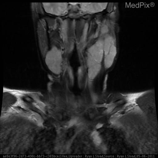 Coronal view showing multiple enlarged lymph nodes in the submandibular and lateral neck area.
