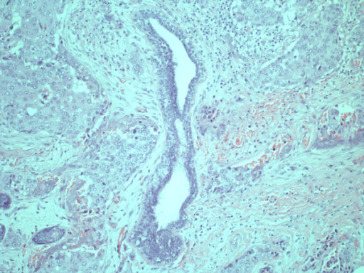 Squamous cell carcinoma surrounding a pre-existent milk duct, central in the picture.