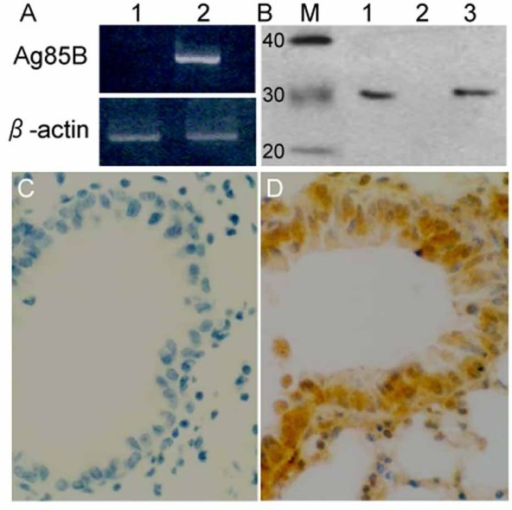Ag85B expression in murine bronchial epithelial cells. A. Murine cells were transfected with pMG plasmids (Lane 1) or pMG-Ag85B plasmids (Lane 2). Ag85B mRNA (992 bp) expression was tested 36 hours after transfection by RT-PCR. B. As described in A, Western blotting was used to determine Ag85B protein expression in the supernatant of pMG-Ag85B transfected murine bronchial epithelial cells (Lane 1) and pMG transfected cells (Lane 2). The positive control was 100 ng purified Ag85B protein (Lane 3). C, D: Mice were intranasally immunized with 100 μg pMG (C) or pMG-Ag85B plasmids (D), with a booster dose 7 days after the initial immunization. Immunohistochemistry staining shows Ag85B protein expression in the lung 48 hours after the booster dose.
