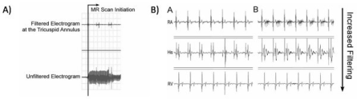 A) Example of the bipolar intracardiac electrograms during scanning before filtering (bottom trace) and after filtering (top trace). B) Example of bipolar intracardiac electrograms at various locations in the heart outside the scanner (left column) and during scanning with different levels of filtering (right column). RA = Right atrium, His = His bundle, RV = right ventricular apex.