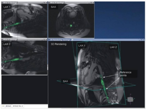 Example of using automatic catheter highlighting and reference image planes to navigate complex 3-D anatomy using real-time CMR. The anatomic location of the catheter position on the image labeled LAX2 is better appreciated when overlaid with long and short axis images of the heart. Figure included with permission from The Journal of Magnetic Resonance Imaging (Guttman JMRI 2007; 26:1429).