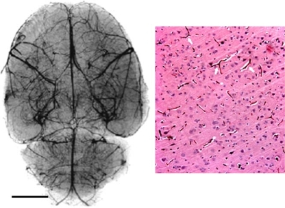 Cerebral vessels. Left panel. Magnification angiography of normal rat brain using barium sulphate contrast medium. There is an abundant vascular supply with many penetrating microvessels in the cortex shown in the right panel following intra-arterial injection of India ink (black regions of a haemotoxylin and eosin stains section). Scale bar = 5 mm for the left panel and 50 µm for the right panel. Modified from Hekmatpanah Surg Neurol 2007;67:564-71