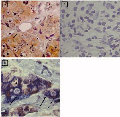 Immunohistochemical detection of LMP2A and double immunohistochemical staining for LMP2A and CK7.A) Ductal breast carcinoma with a high number of LMP2A positive cells. Positive signal for LMP2A is restricted to the cytoplasm and membrane of tumor epithelial cells (1000X). B) LMP2A negative ductal carcinoma tissue (1000X). C) Ductal breast carcinoma. Positive double signal for LMP2A (brown signal, dotted arrow) and CK7 (blue signal, full arrow) restricted to the cytoplasm and membrane of the same tumor epithelial cells (1000X).