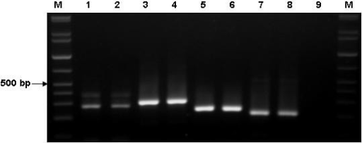 Results of PCR amplification for PPP2R5C gene using different primer pairs. Lane M: 100-bp DNA ladder; 1 and 2: amplicom using PPP2R5C1f-/PPP2R5C1b primers; small products were 277 bp (12 + 14 exons) and large products were 394 bp (12 + 13 + 14 exons); 3 and 4: amplicom using PPP2R5C3f/PPP2R5C3b primers, the product was 304 bp (10 + 11 + 12 + 12a exons); 5 and 6: amplicom using PPP2R5C5f/PPP2R5C5b primers, the product was 242 bp (III + 2 exons); 7 and 8: ampilcom using PPP2R5C6f/PPP2R5C6b primers, the product was 213 bp (IV + 2 exons); 9: negative control.