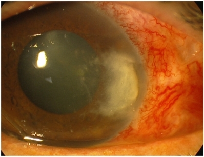 Abscess of the nasal cornea of the right eye. The abscess, measuring 6 mm high and 4 mm wide, was located on the pterygium ablation site. Ulceration with raised edges of about 3 mm was in the center of the abscess. The abscess was surrounded by infiltrate with irregular and ramified edges, as well as several microabscesses.