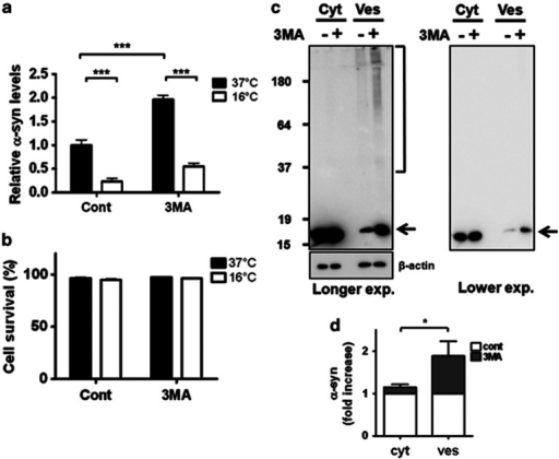 Exocytosis-dependent secretion of α-synuclein in 3-methyladenine (3-MA)-treated cells. (a) Differentiated SH-SY5Y cells expressing α-synuclein were treated with dimethyl sulfoxide (DMSO) or 10 mℳ 3-MA and incubated at a normal (37 °C) or low (16 °C) temperature to inhibit exocytosis for 2 h. (a) The temperature-dependent release of α-synuclein to the medium (***P<0.001). (b) The cell survival percentage at low temperature. (c) The increase in α-synuclein aggregates in the vesicle fraction of 3-MA-treated cells is shown. The arrow represents the size of α-synuclein monomers, and the brackets show the aggregated forms of α-synuclein. (d) The graph shows the fold increase of α-synuclein in the vesicle fractions (*P<0.05).