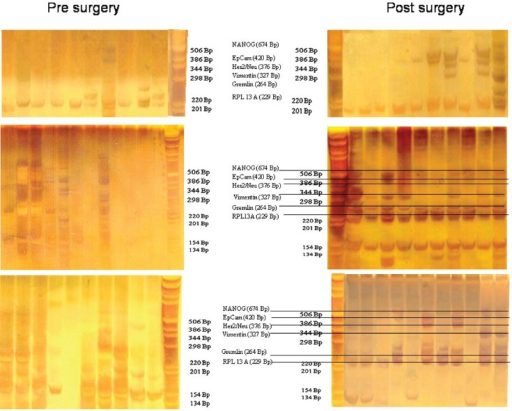 Gel analysis of expression profiles of 10–12 cells from three patients isolated before and after surgery. Each lane is the profile derived from a single cell.