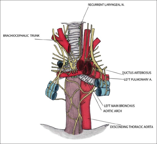 Anatomical Relationship Between The Left Main Bronchus Open I