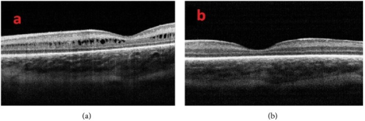 (a) OCT image of a patient with cystoid macular edema at 39-week postmenstrual age and (b) after resolution of cystoid macular edema six weeks later.