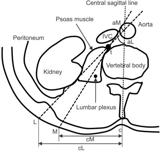 It shows the schematic picture of measurements method. c: skin point which meets with central sagittal line, t: target point of lumbar plexus block, L: lateral limit skin point, M: medial limit skin point, cM or cL: distance between c and M or L, tM or tL: distance between t and M or L, aL and aM: angle which is made by central sagittal line and tL and tM, respectively.
