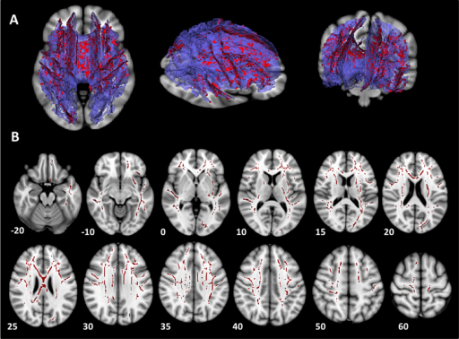 White matter regions demonstrating a significant effect of pubertal status on mean diffusivity (MD). (A) A large single cluster of voxels from the mean skeleton was identified which showed a decrease in MD in the late puberty group compared with the early puberty group. 3D images in axial, sagittal and coronal dimensions, showing areas demonstrating a significant effect of puberty on MD (red), superimposed on 3D reconstruction of the mean white matter tract skeleton (purple). These images are superimposed onto a 2D brain slice in MNI space for orientation purposes at z = −2, z = −8 and y = −35. Images created using Slicer (www.slicer.org) (Fedorov et al., 2012). B) Conventional display of axial slices depicting mean skeleton regions demonstrating a significant effect of puberty (red), shown in MNI space on an MNI standard brain template (MNI z coordinates are indicated for each axial slice).