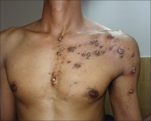 Close-up view showing papulonodular lesions along the Blaschko's lines on the chest and upper arm