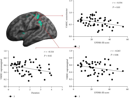 Correlations between the VMHC values and clinical measures in the patient group. VMHC = voxel-mirrored homotopic connectivity; UPDRS = Unified Parkinson's Disease Rating Scale.