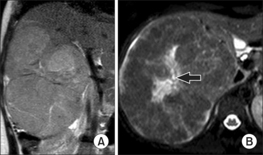 In the T2-weighted (A) coronal and (B) axial images, a central scar (arrow) present in the lesion.