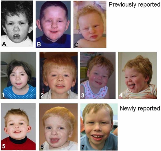 Facial appearance of patients. Upper row: previously reported patients A, B, and C. Lower rows: patients 1–7 in this study. Note the monozygotic twins in the center (patients 3 and 4). Shared facial characteristics demonstrated across the group include narrow palpebral fissures, a thin vermilion border to the upper lip, a full lower lip and full cheeks [Color figure can be seen in the online version of this article, available at http://wileyonlinelibrary.com].