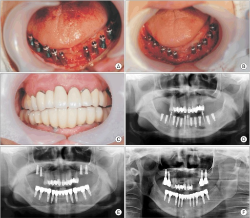 Photographs and radiographs of a 44-year-old female with aplastic anemia who underwent implant-supported restoration. A. Ten implants were placed in the mandible with a surgically-guided stent. B. Healing abutment connection and apically repositioned flap during the second surgery. C. Frontal view 20 months after prosthetic loading. D. Panoramic view after implant installation. Panoramic view after implant placement surgery with a few provisional implants. E. Panoramic view; final prosthesis in the mandible. Four implants were placed on each side of the posterior maxilla with sinus elevation. F. Panoramic view; seven years after implant placement surgery.