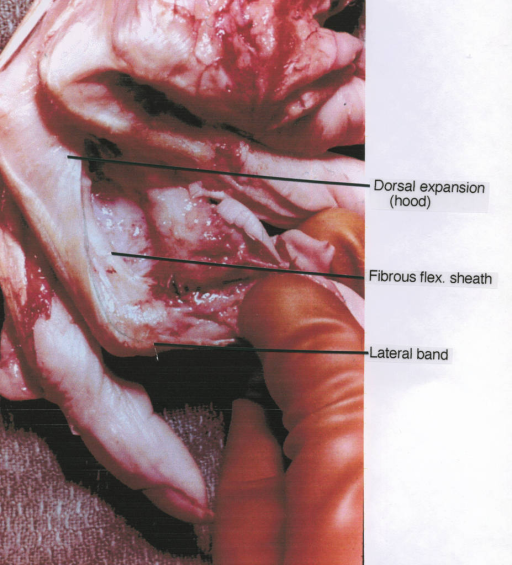 dorsal expansion; dorsal hood; fibrous flexor sheath; lateral band