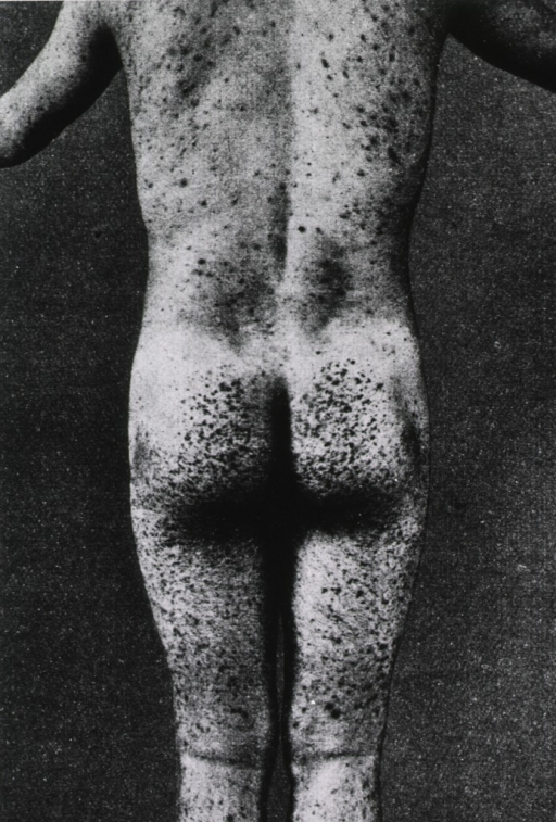 <p>Back view of male scurvy victim, showing characteristic hemorrhages under the skin.</p>